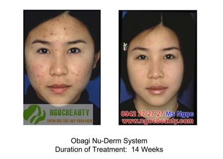 Clenziderm Obagi - Hệ thống điều trị mụn thẩm thấu sâu và tận gốc