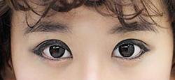 Ảnh số 35: lens mắt - Giá: 1.234