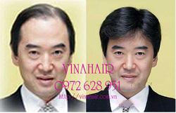 Ảnh số 48: đầu đội tóc thật - Giá: 599.000