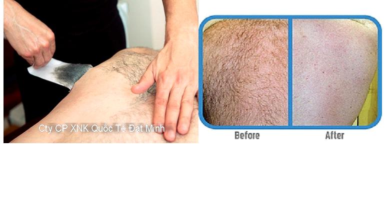 Miếng sáp tẩy lông cơ thể Shifei Body Legs Arms Ảnh số 27883646