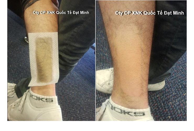 Miếng sáp tẩy lông cơ thể Shifei Body Legs Arms Ảnh số 27883686