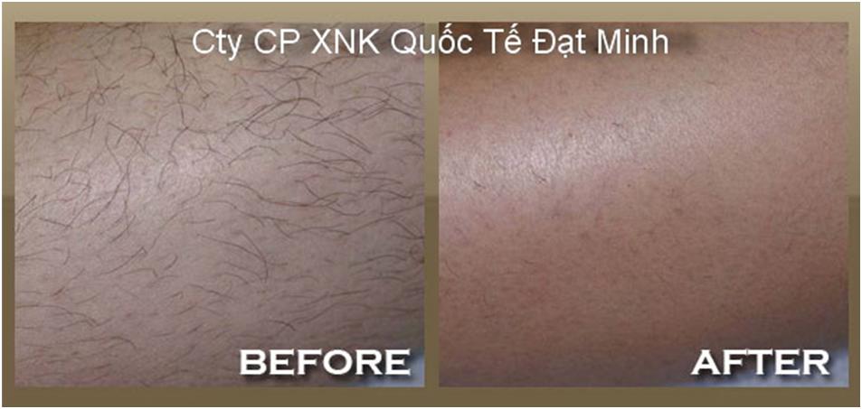 Miếng sáp tẩy lông cơ thể Shifei Body Legs Arms Ảnh số 27883691