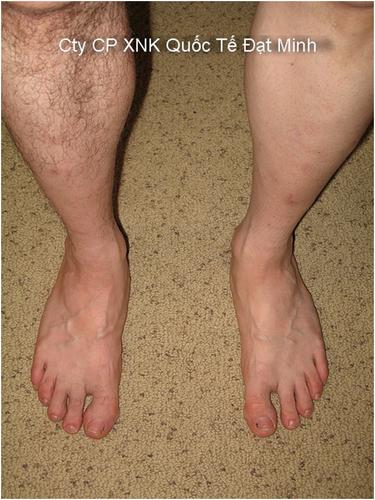 Miếng sáp tẩy lông cơ thể Shifei Body Legs Arms Ảnh số 27883695