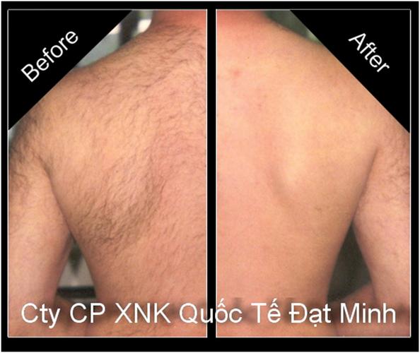 Miếng sáp tẩy lông cơ thể Shifei Body Legs Arms Ảnh số 27897230