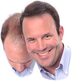Ảnh số 3: Thuốc kích thích mọc tóc - Giá: 900.000